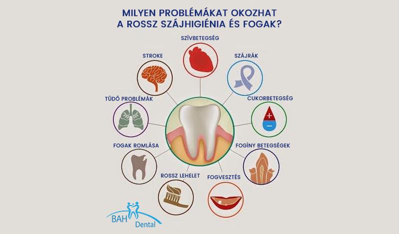 Gócbetegségek rossz fogak miatt