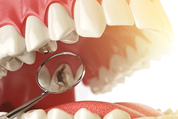fogszuvasodás jelentése - BAHDental fogászat, Budapest, XI